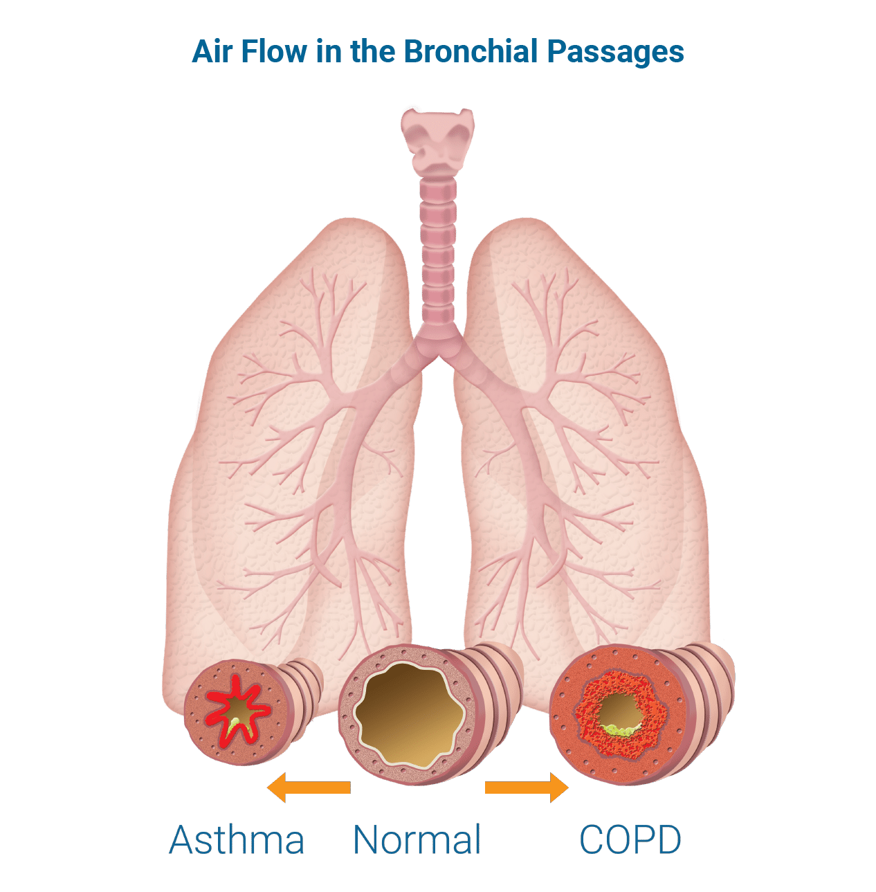 air flow in the bronchial passages, asthma, normal, COPD