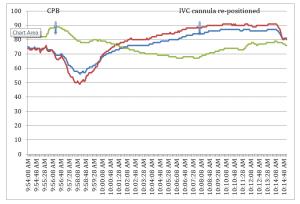 case study, PAPVR, partial anomalous pulmonary venous return, chart, graph, IVC