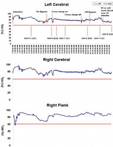 Left Cerebral, SenSmart, rSO2, Right Cerebral, Flank, graph, chart, transfusion